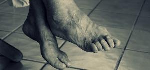 Segona edició de les jornades de prevenció i atenció del peu en persones diabètiques